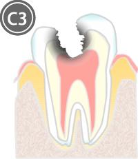 激痛 虫歯 治療 後